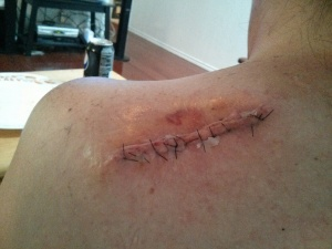 This is where the 3cmX3cm once was, and turned into a 3 inch cancer removal.