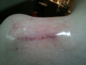 This is post stitches removal and now just waiting for it to completely heal.
